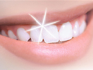 blanqueamiento dental tetraciclina