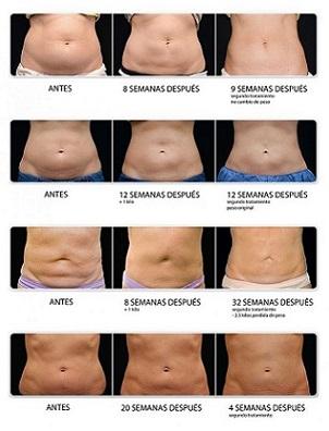 tratamiento de estetica corporal